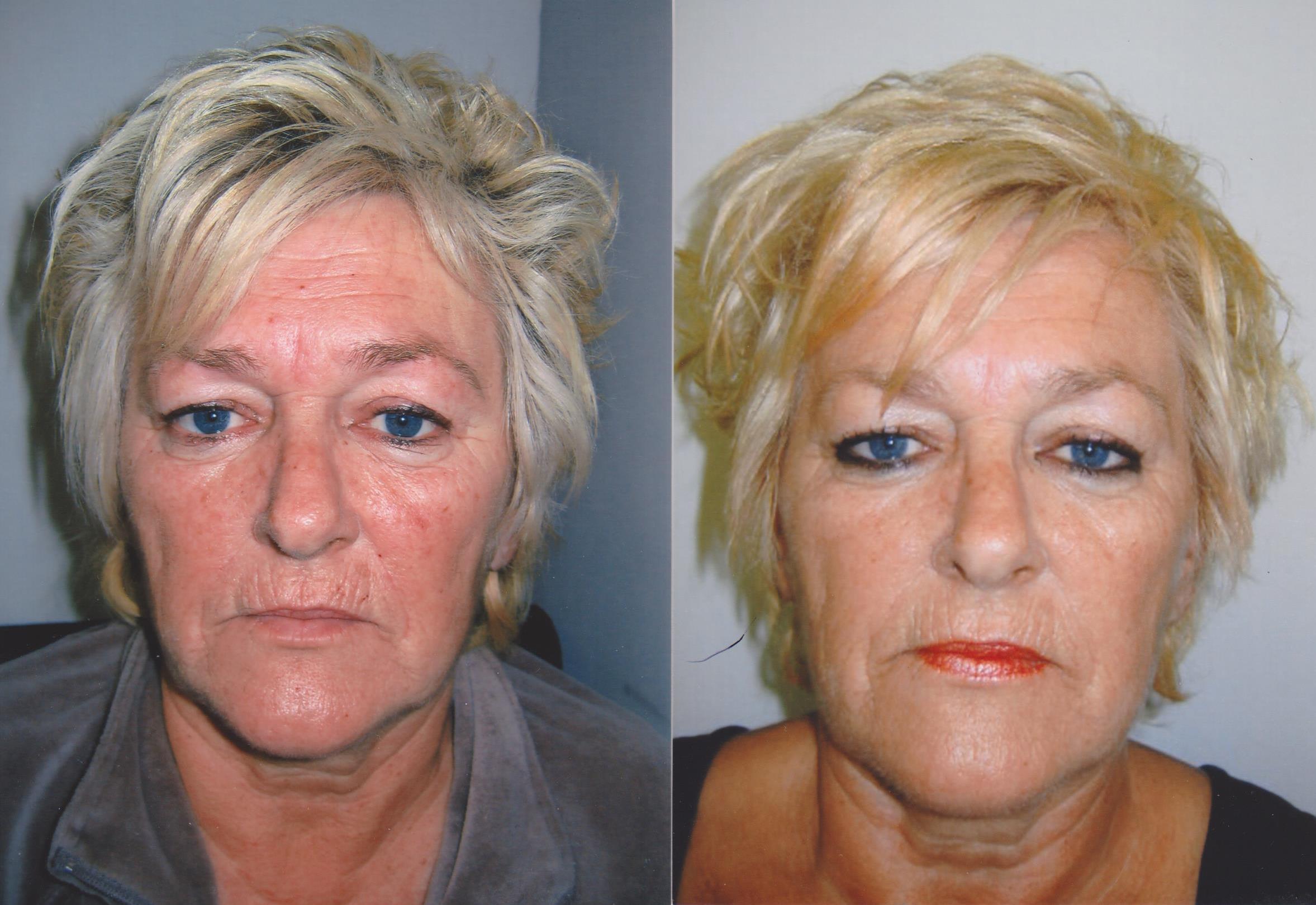 resultaten cosmetische acupunctuur